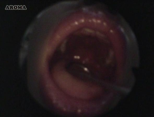 耳鼻咽喉科の診察盗撮29