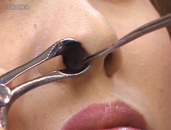 耳鼻咽喉科の診察盗撮34