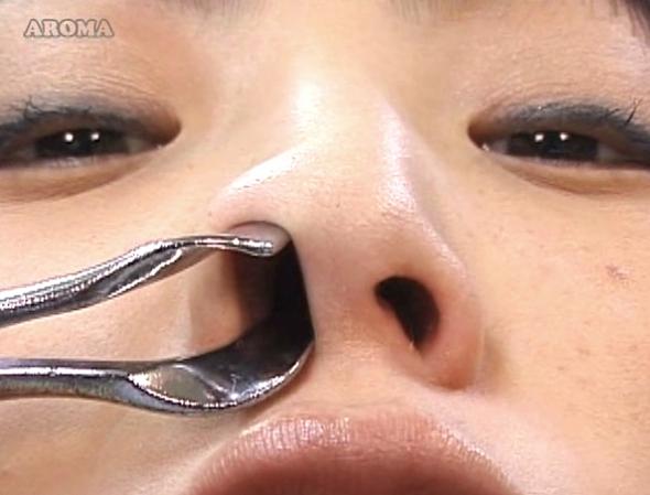 耳鼻咽喉科の診察盗撮4