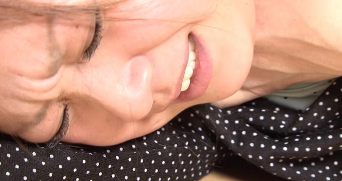 縊り首筋に索溝と崩落の痕跡12
