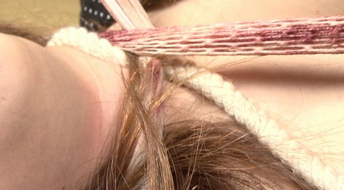 縊り首筋に索溝と崩落の痕跡2