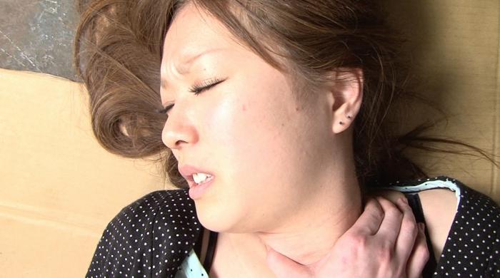 縊り首筋に索溝と崩落の痕跡11