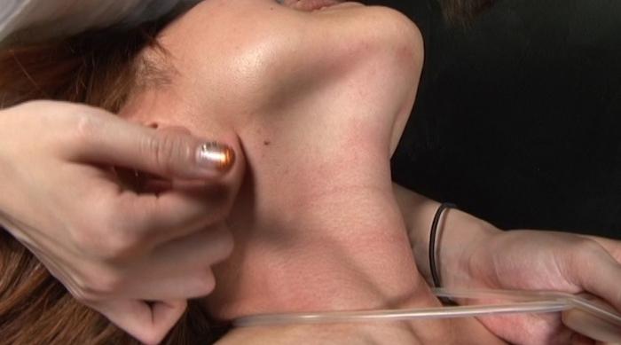 絞め動脈の連鎖に顔面と蒼白17